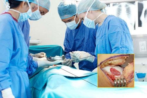 Hình ảnh Giảm đau xương khớp tùy tiện: Lợi bất cập hại