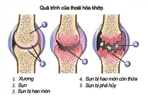 qua-trinh-thoai-hoa-khop