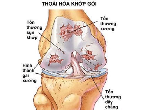 thoai-hoa-khop