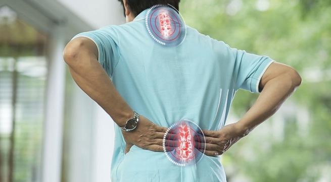 Cột sống bị vôi hóa, gai viêm gây đau nhức