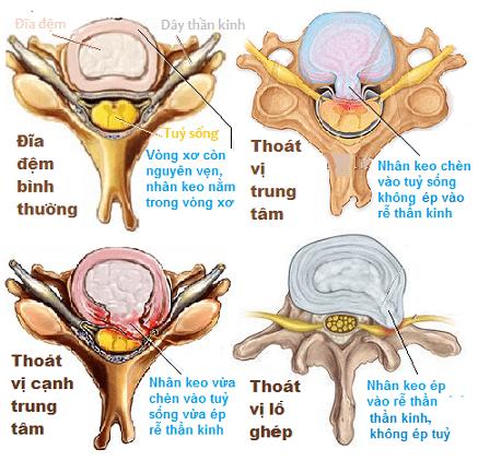 kham-thoat-vi-dia-dem
