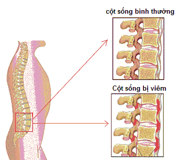 viem-cot-song-dinh-khop