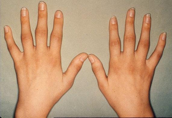 Hình ảnh Cách điều trị hiệu quả bệnh viêm đa khớp dạng thấp