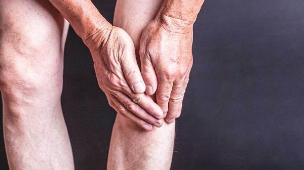 Hình ảnh Đau khớp gối - Thuốc và dinh dưỡng thế nào để giảm đau